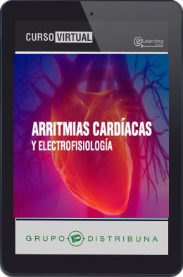 Arritmias Cardíacas y Electrofisiología