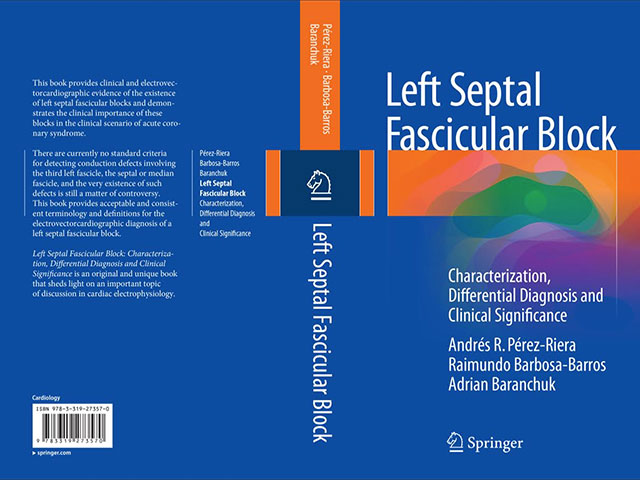 Left Septal Fascicular Block