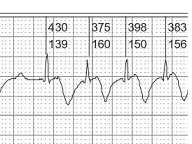 Paciente con marcapasos definitivo. ¿Cuál es la espiga, cuál el QRS y la onda T?
