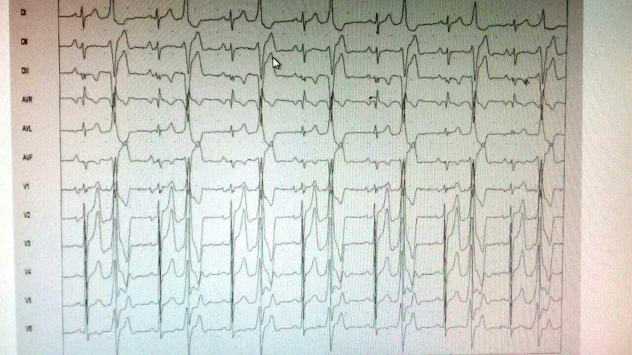 Paciente de 23 años sin cardiopatía estructural y normalización total del ECG luego de ARF