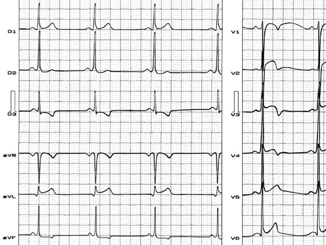 Pattern of pseudo subepicardial injury and ischemia in anterior wall in an athlete, professional player of basketball with normal heart