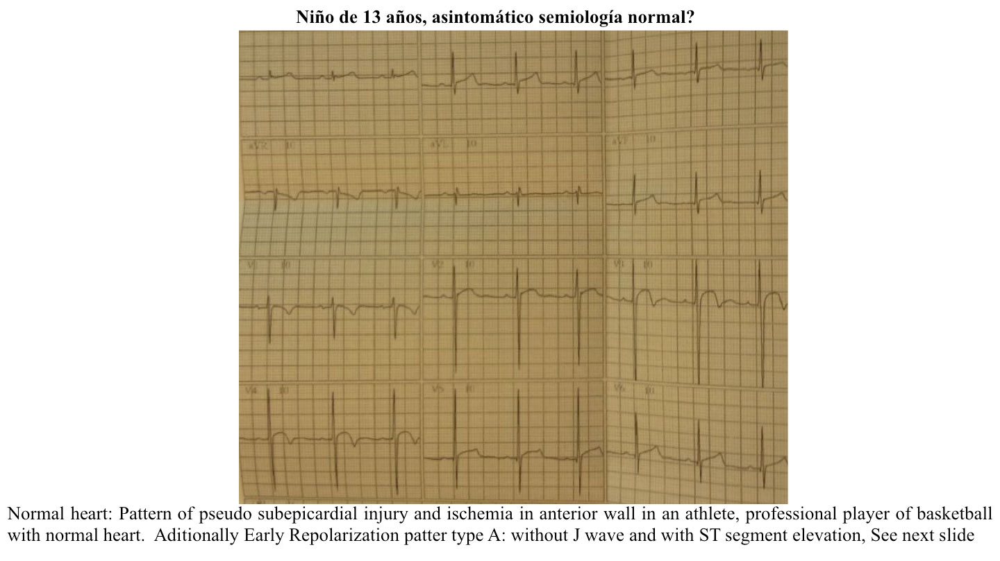 Pseudo epicardial injury pattern in anterior leads in thirteen years old child