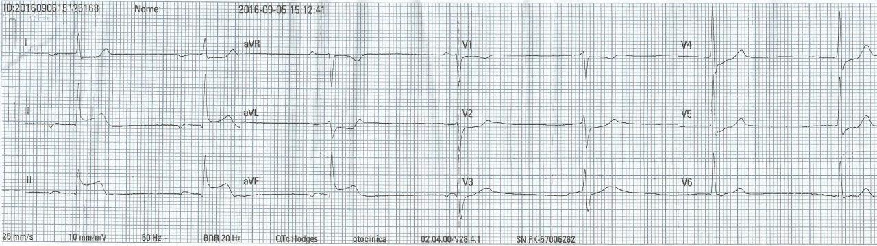 ACV isquémico con ECG que simula un SCACEST de cara inferior