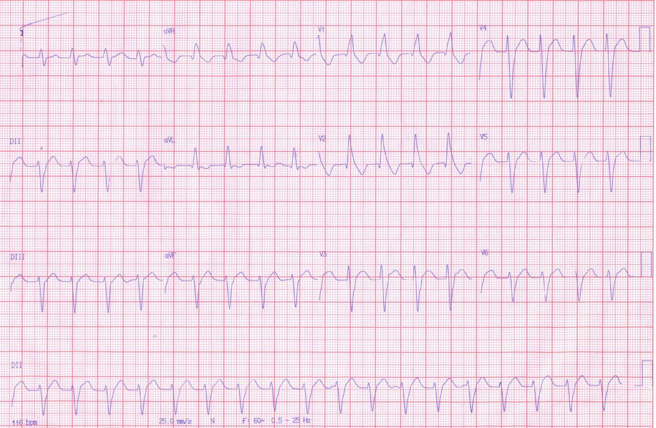 Taquicardia ventricular fascicular posterior verapamilo sensible