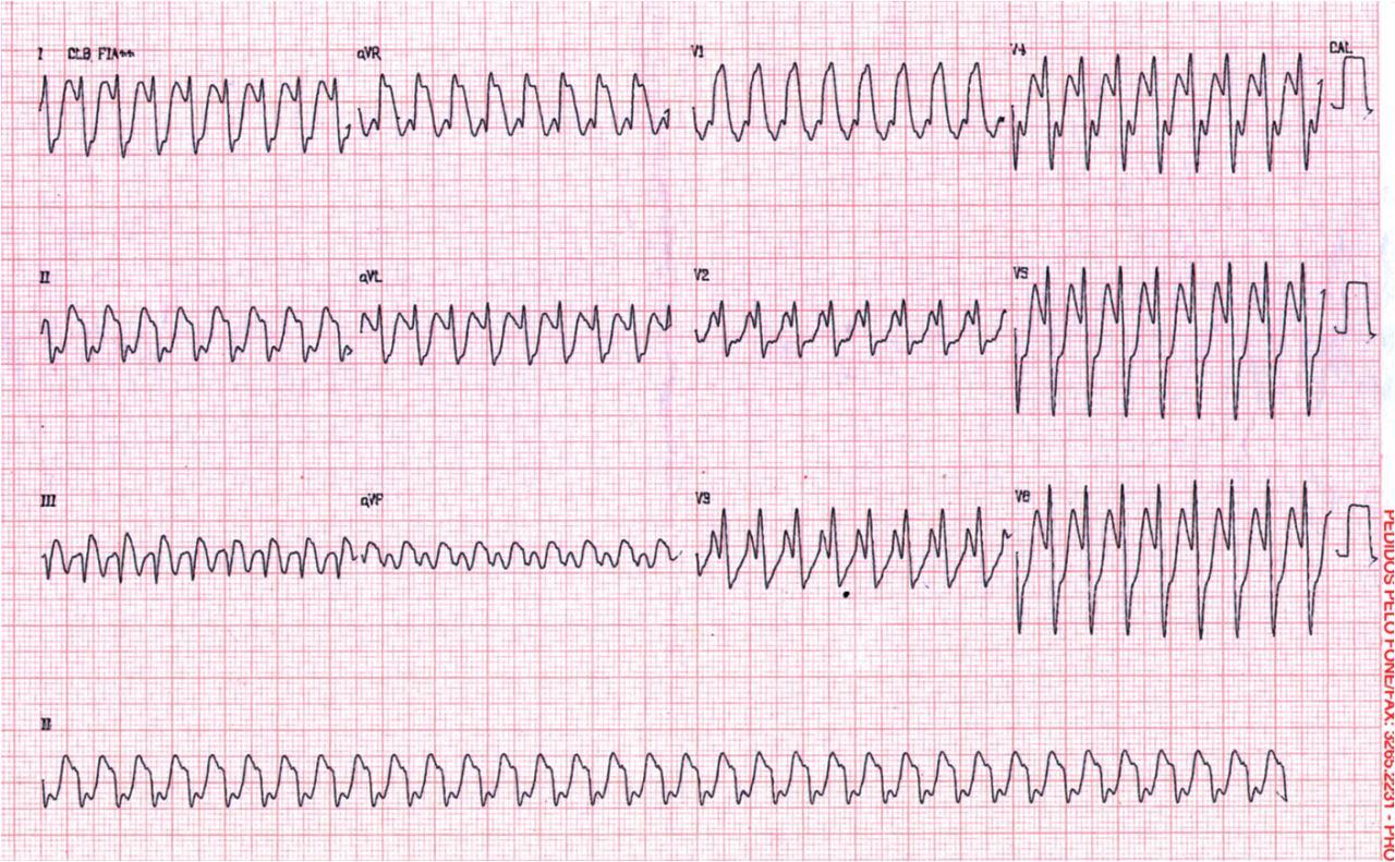 Secuencia ECG de paciente portador de aleteo auricular
