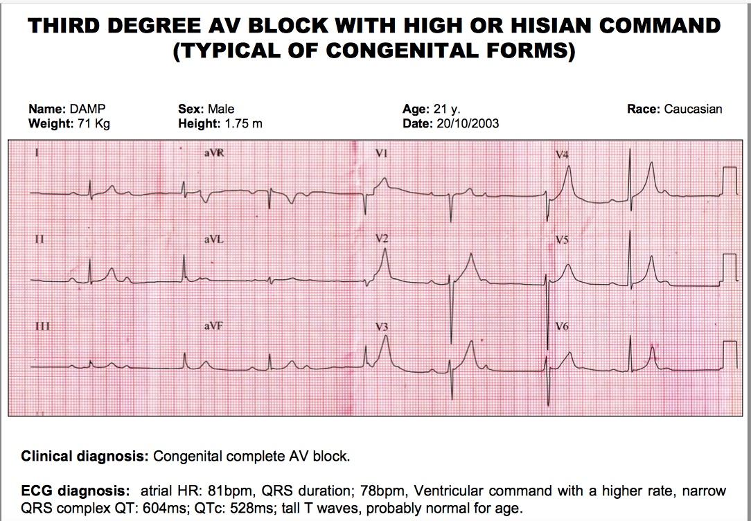 Congenital complete AV block