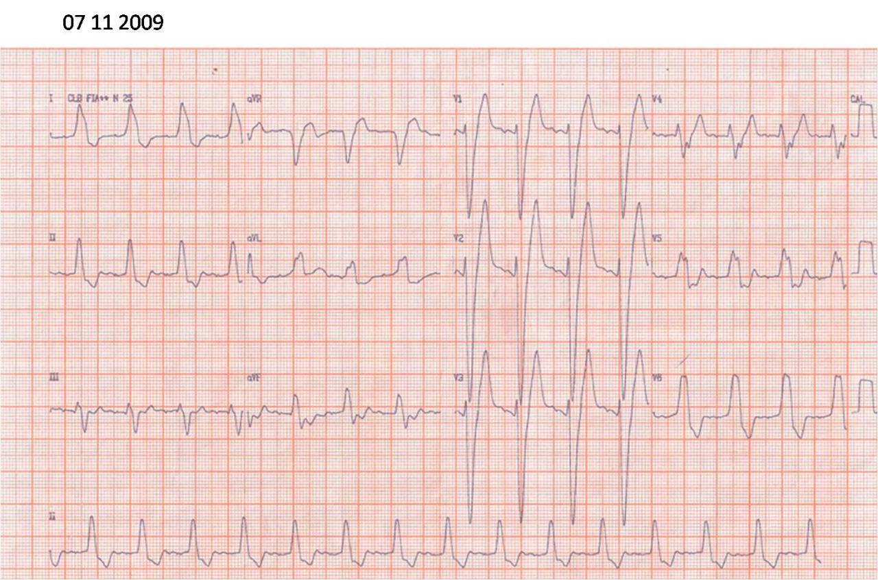 Secuencia ECG de paciente de 71 años. Trazados de 2009, 2010 y 2017 cuando presentó episodios sincopales