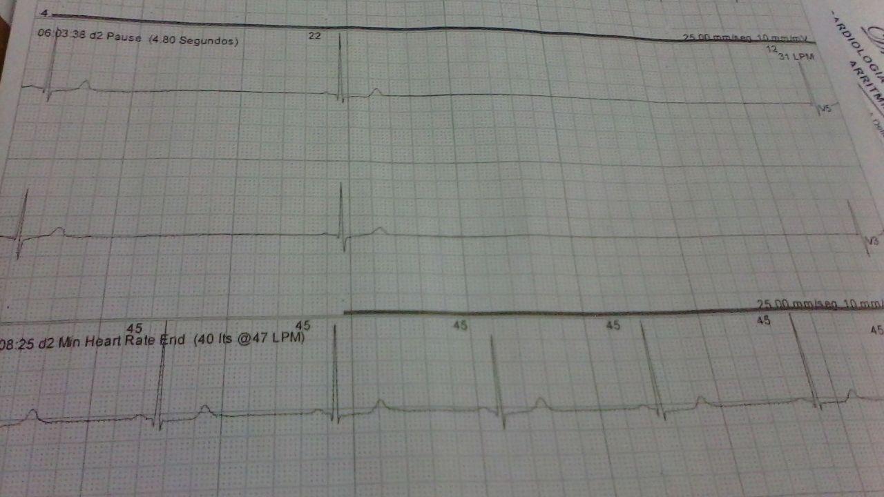Paciente de 60 años con paros sinusales de hasta 5 segundos y RIVA