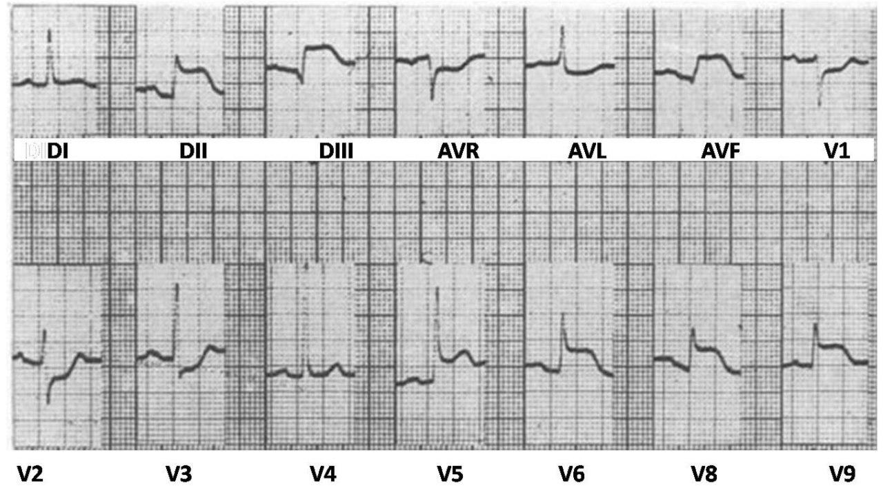 Paro cardíaco por actividad eléctrica sin pulso en mujer con SCA ínferolateral