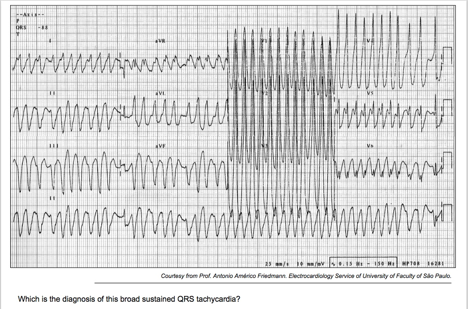 Broad sustained QRS tachycardia