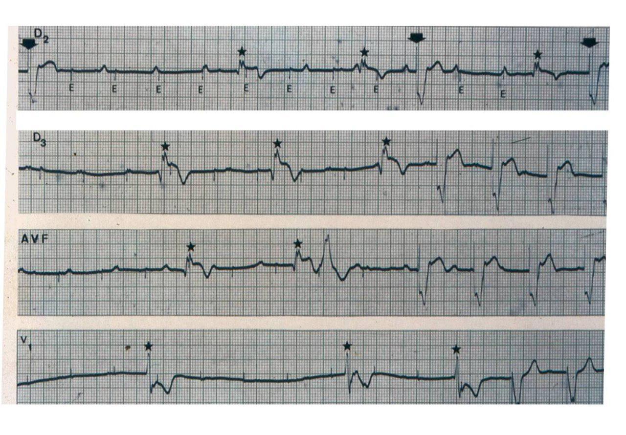 Síndrome coronario agudo en paciente portador de marcapasos