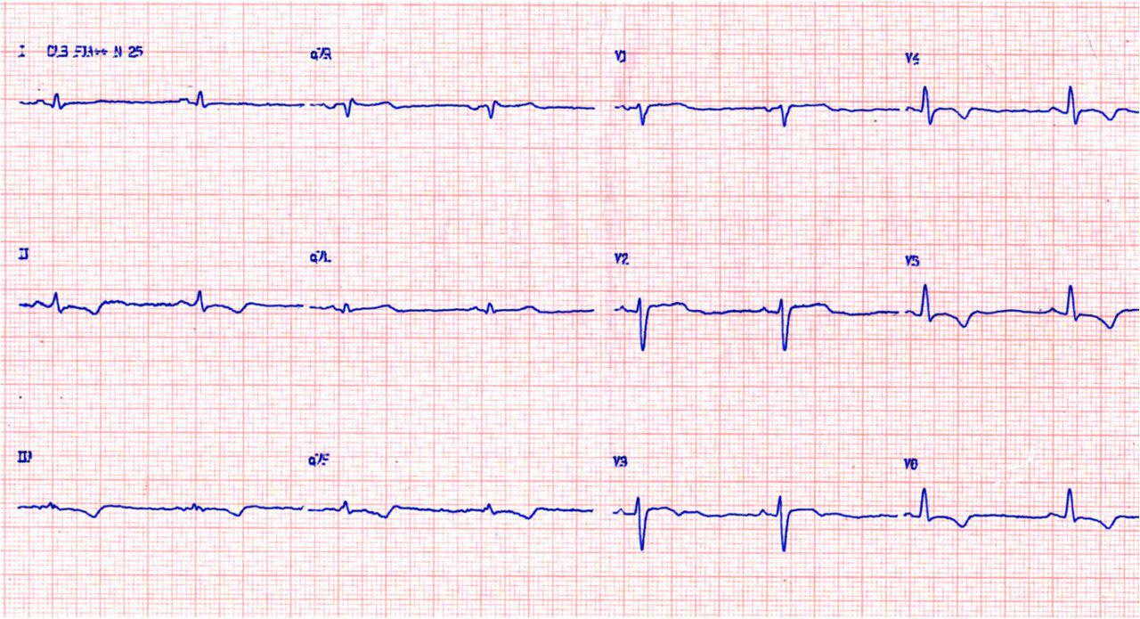 Chagasic patient with Fey 43% has implanted an ICD