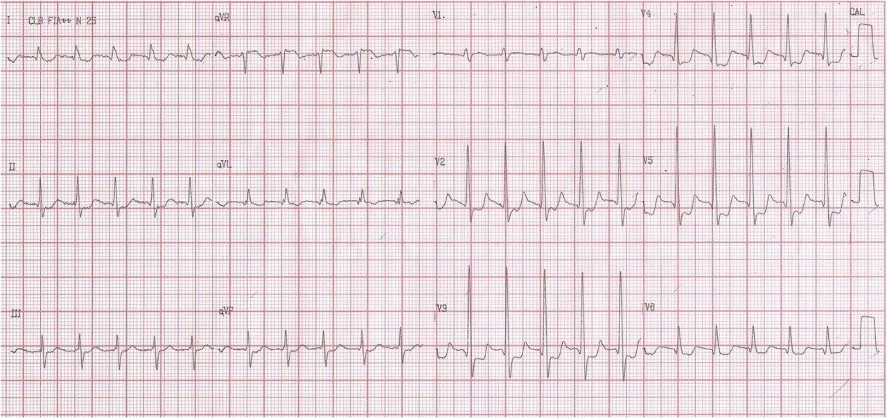 TPSV y enfermedad de tres vasos coronarios