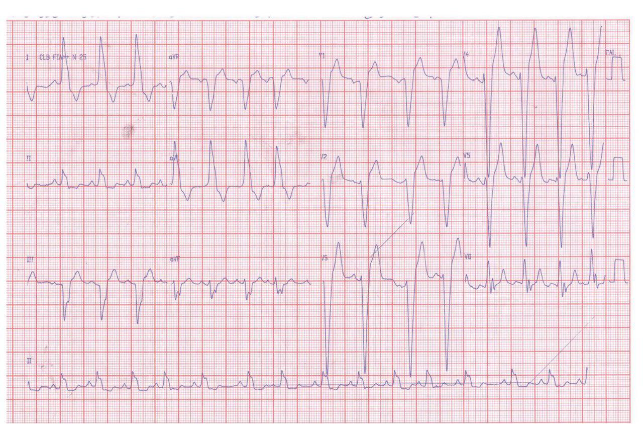 Suboclusión de ramo marginal de la arteria Cx en paciente en diálisis