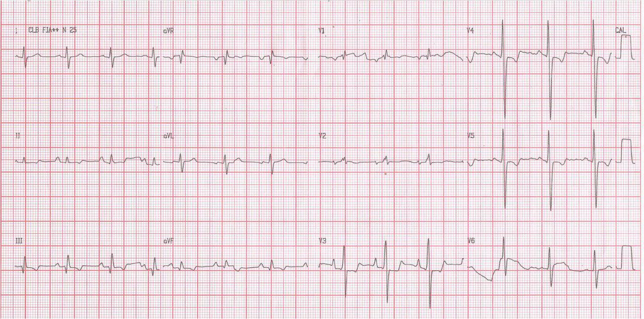 Paciente de 30 años con Hipertensión pulmonar primaria