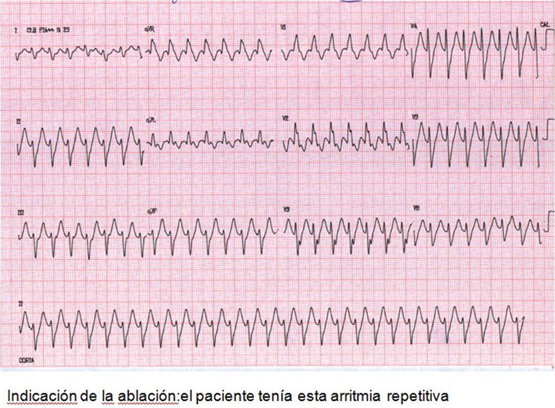 TV ablacionada y posterior memoria cardíaca en el ECG