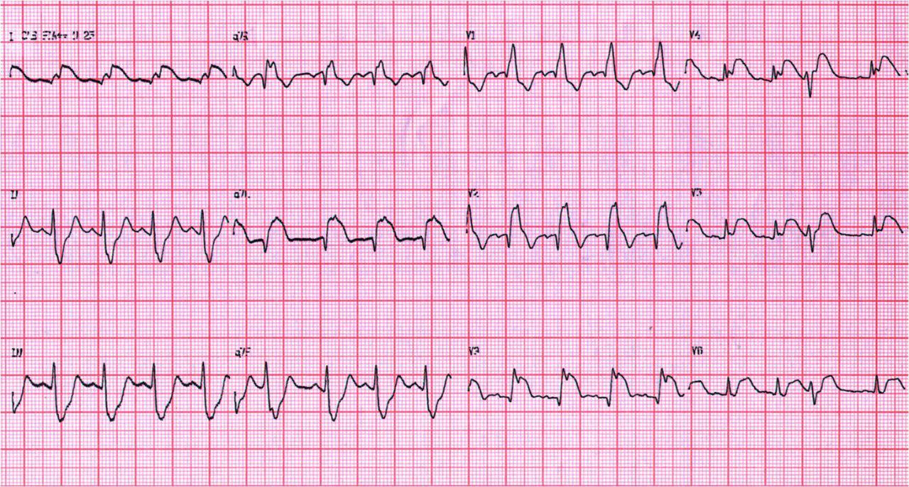 Angor prolongado y shock cardiogénico en paciente con trombofilia que fallece
