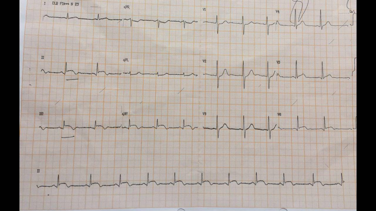 Miocarditis focal en joven de 19 años con típico realce tardío mesocárdico en la RNM