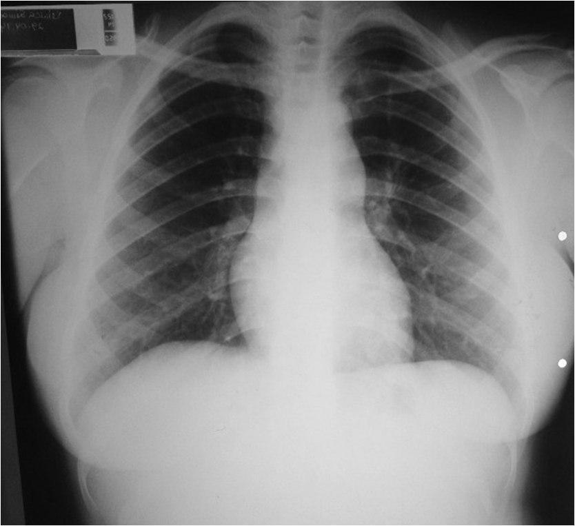 Mujer joven con soplo sistólico en foco pulmonar por estenosis valvular