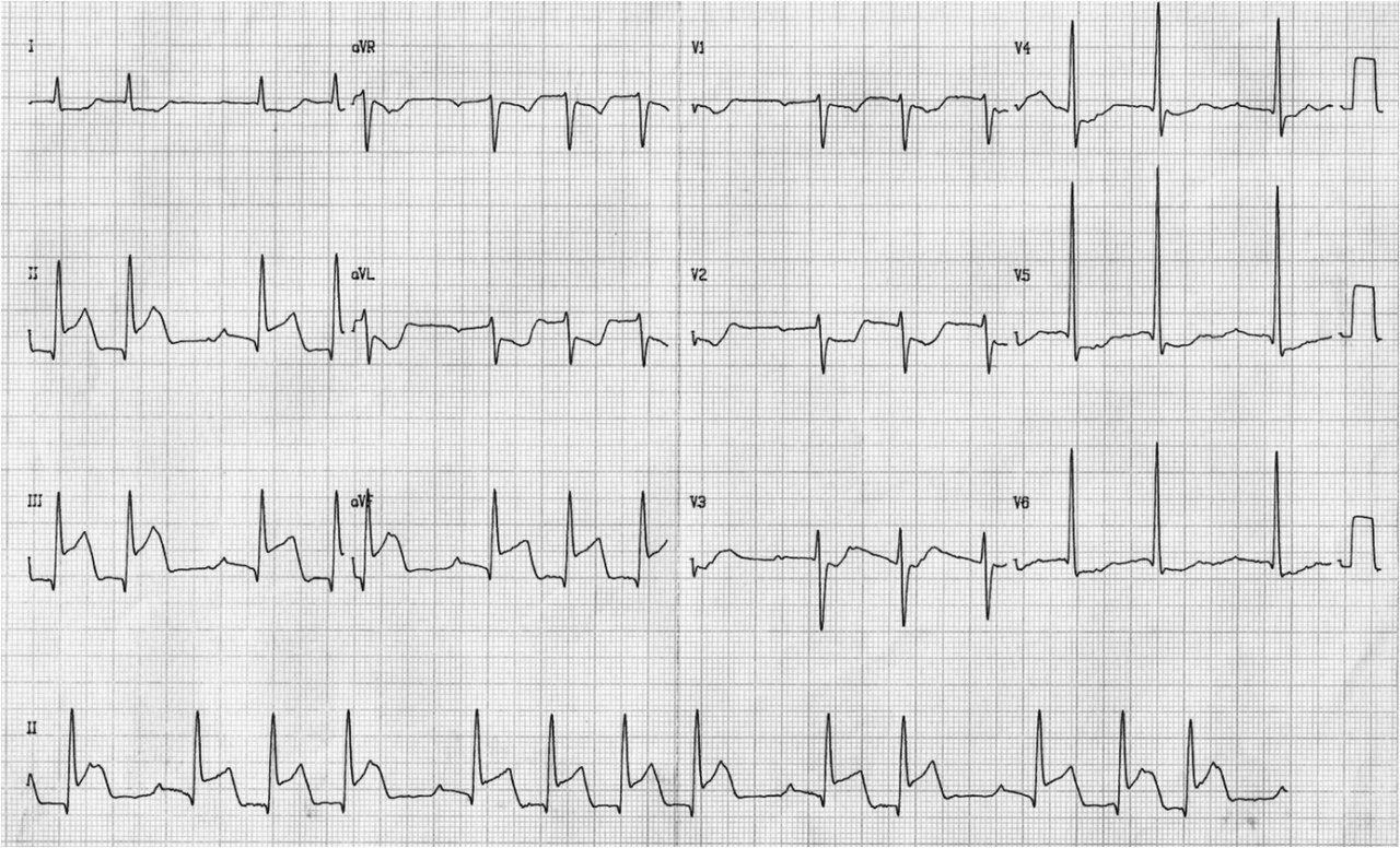 Paciente diabético e hipertenso cursando IAM diafragmático e infarto de aurícula
