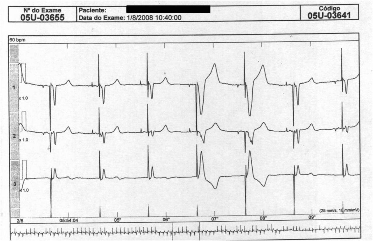 Paciente con resincronizador. Falla de captura intermitente en VI por aumento de umbral