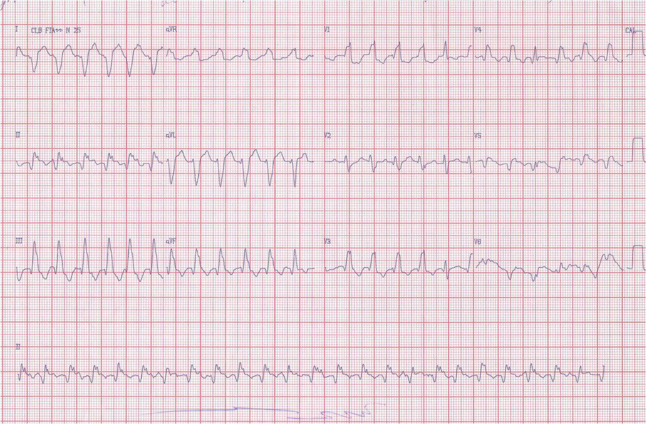 Masculino 65 años con IAM previo TV por aneurisma ventricular