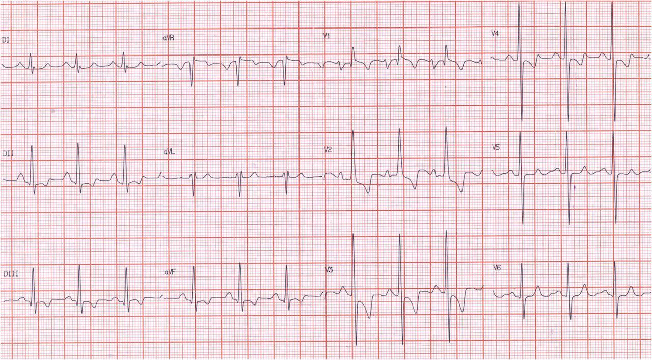 Paciente de 31 años portador de estenosis mitral reumática.