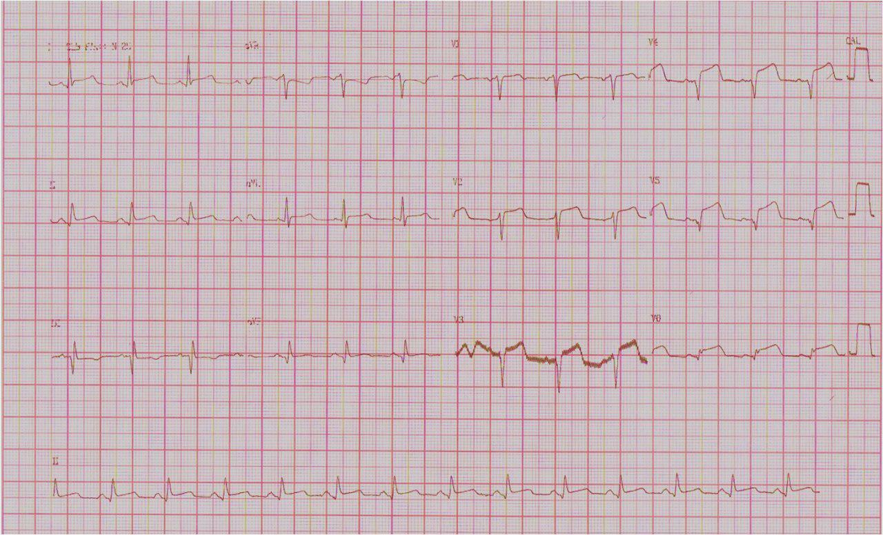 Paciente de 71 años con obstrucción de arteria DA proximal que se recanaliza. Presenta complicación con una CIV.