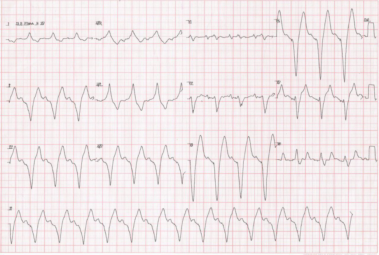 Empeoramiento de la Insuficiencia cardiaca  2 días tras el implante de un  MP bicameral. HiperK
