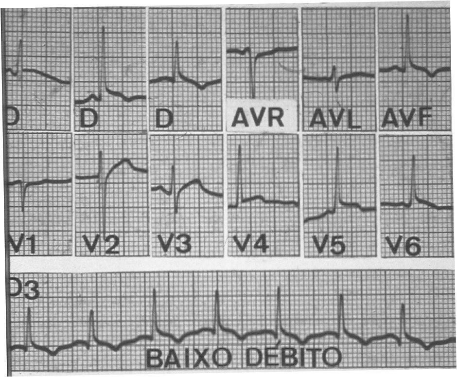 Paciente con cuadro de pericarditis purulenta con bajo gasto cardíaco por lo que se drena mediante punción guiada por ECG