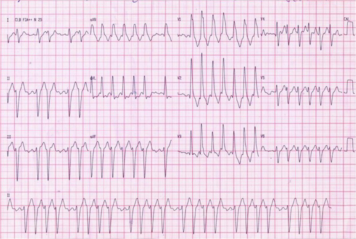 Femenina 86 a. Demencia. Atc de ACV embólico. Síndrome de Bayes.