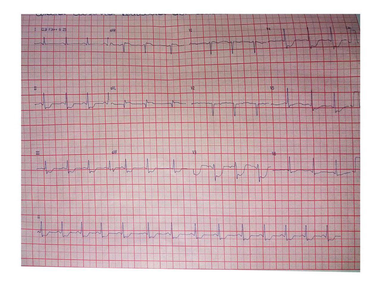 Femenina de 25 años con dolor anginoso prolongado. Disección espontánea de arteria DA