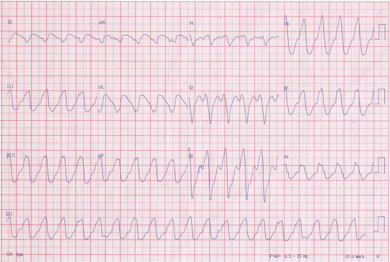 Hombre, 31 años, miocardiopatÍa dilatada no isquémica. CDI por MS recuperada. Fey=31%.