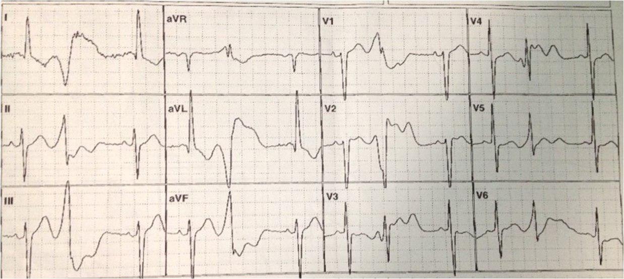Paciente 71 años medicado con hidroclorotiazida, presenta ondas U gigantes.