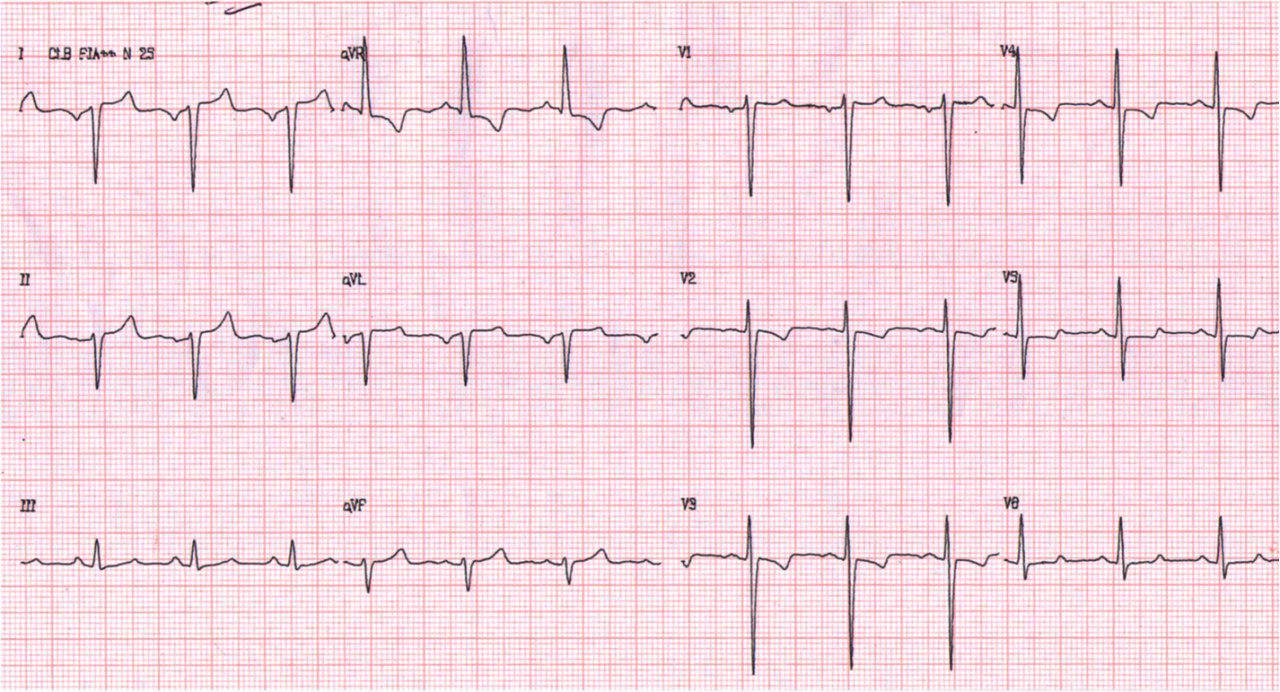 Paciente de 53 años portador de dextrocardia presenta IAMCEST por oclusión de Tronco de CI