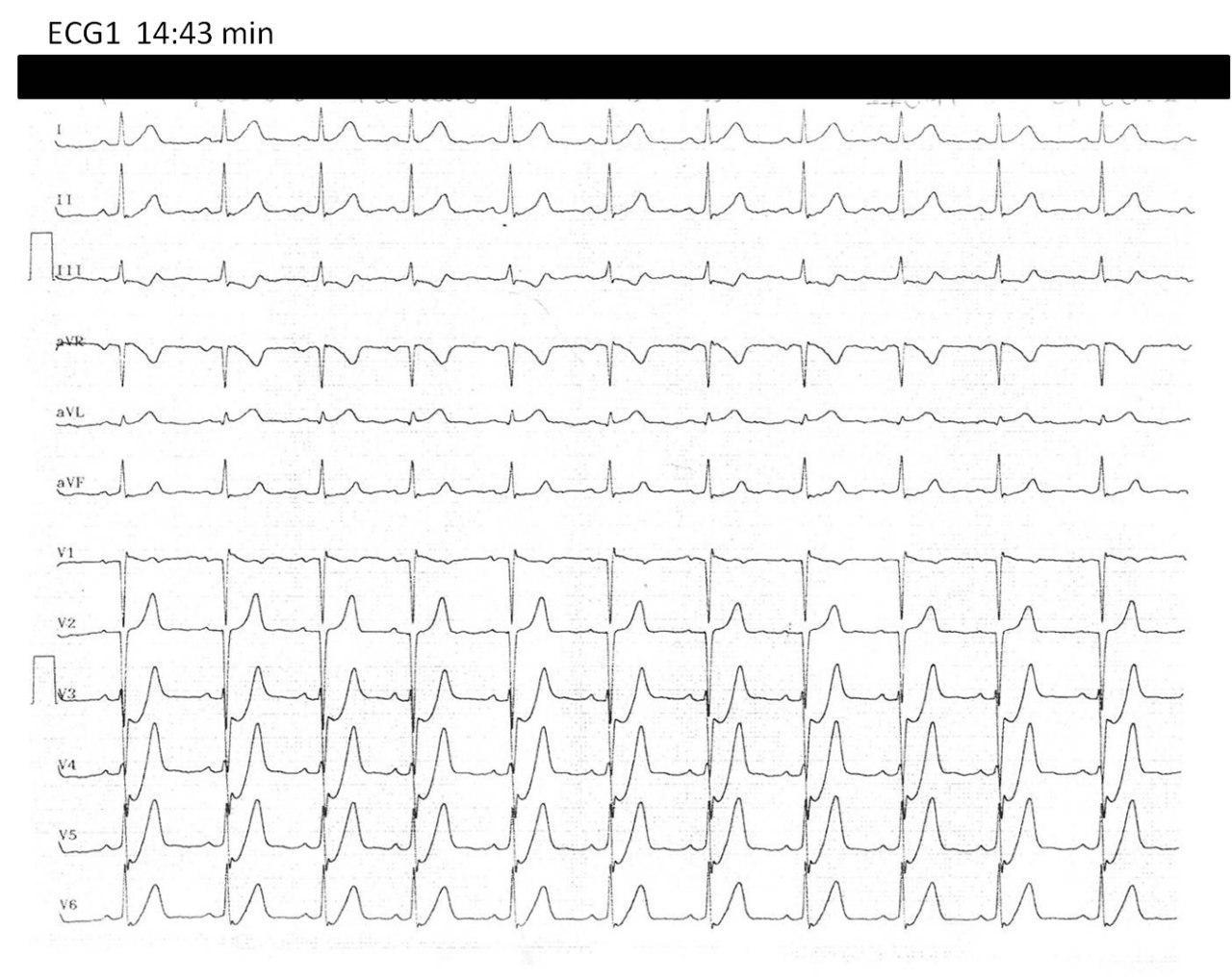 Paciente de 53 años hipertenso y diabético con SCA por obstrucción de DA que es revascularizada