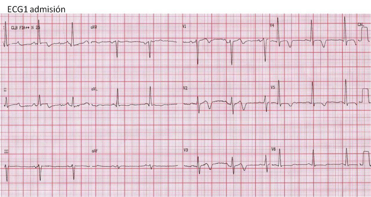 Masculino 56 años con mareos, vómitos, debilidad, nistagmus, ataxia de miembros inferiores. Lesiones coronarias mínimas
