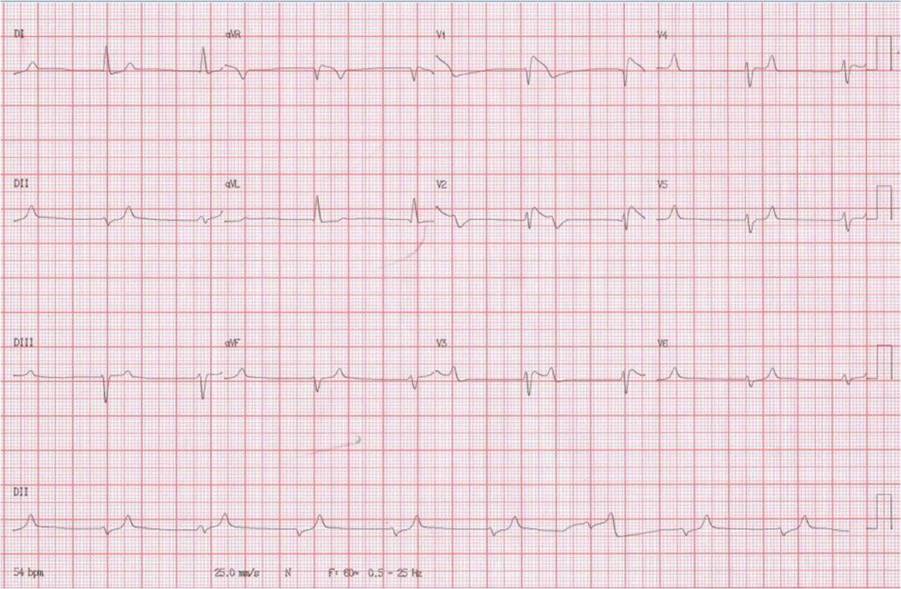 Paciente 67a con shock séptico e hiperpotasemia. Fallece. Fenocopia de Brugada por hiperkalemia?