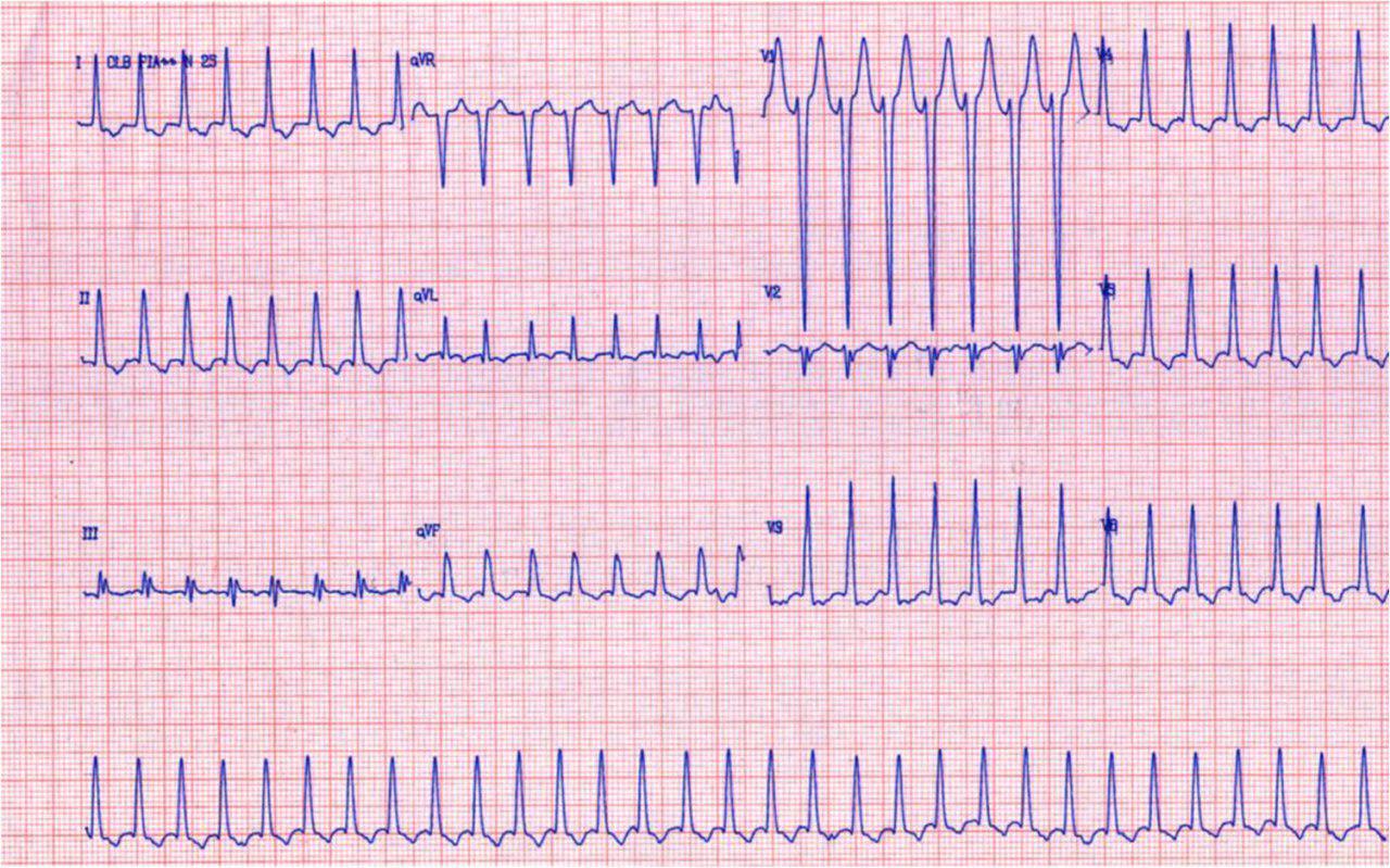 23 años, palpitaciones, disnea de esfuerzo por taquicardia auricular que responde a adenosina