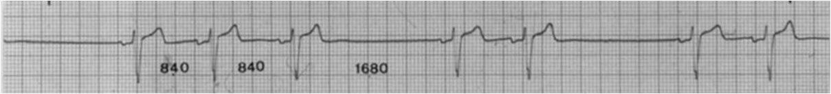 Caso con bloqueo sinoatrial que desarrolla paro sinusal con estimulación esofágica
