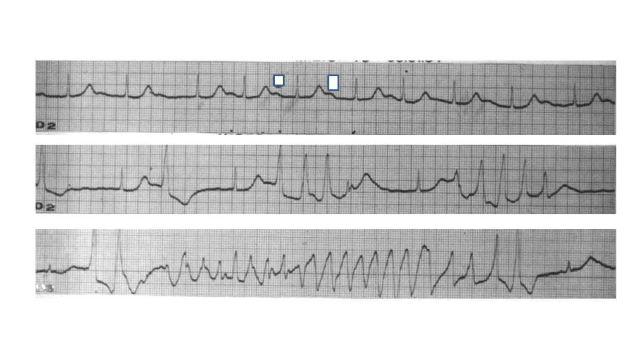 Male patient medicated with quinidine and propranolol consultation for syncope
