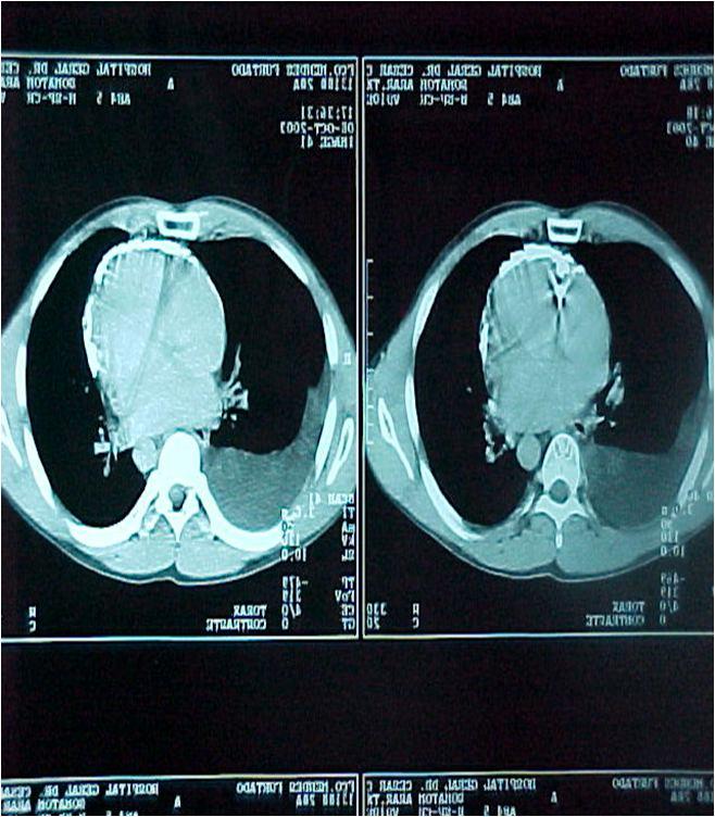 Pericarditis constrictiva en una TAC