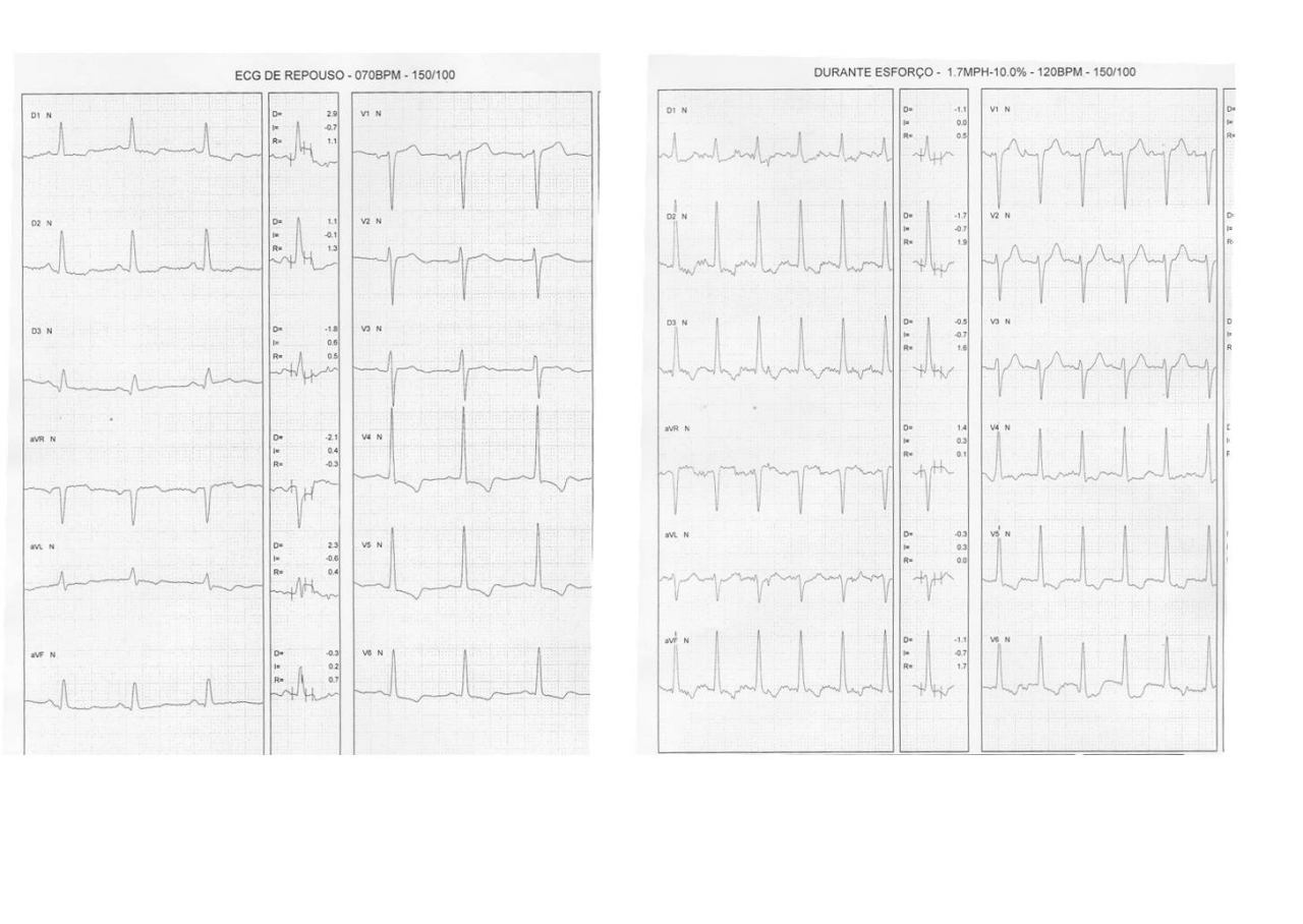 Fememina de 68 años, asintomática. Francos antecedentes coronarios. PEG de control