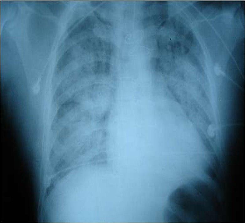 Edema Agudo de Pulmón por ruptura de músculo papilar durante IAM