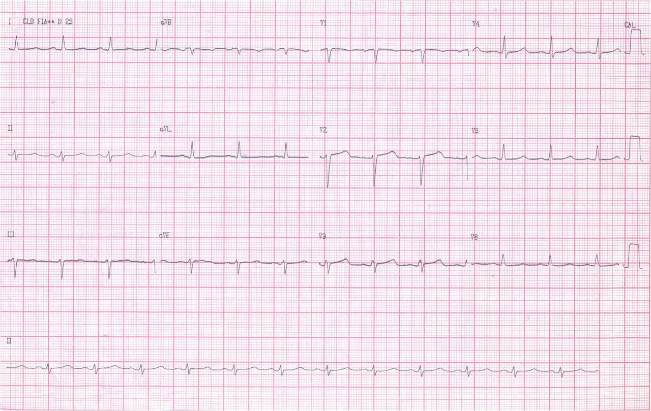 Masculino 42 años. FV abortada con HVI concéntrica. CDI y muerte posterior. Amiloidosis cardíaca