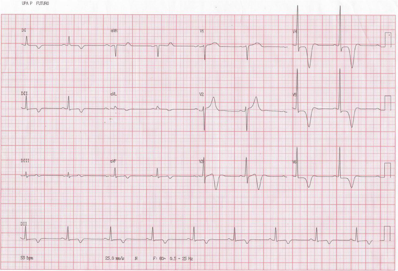 Masculino 31 años, Disnea de esfuerzo, mareos y palpitaciones. Miocardiopatía hipertrófica apical