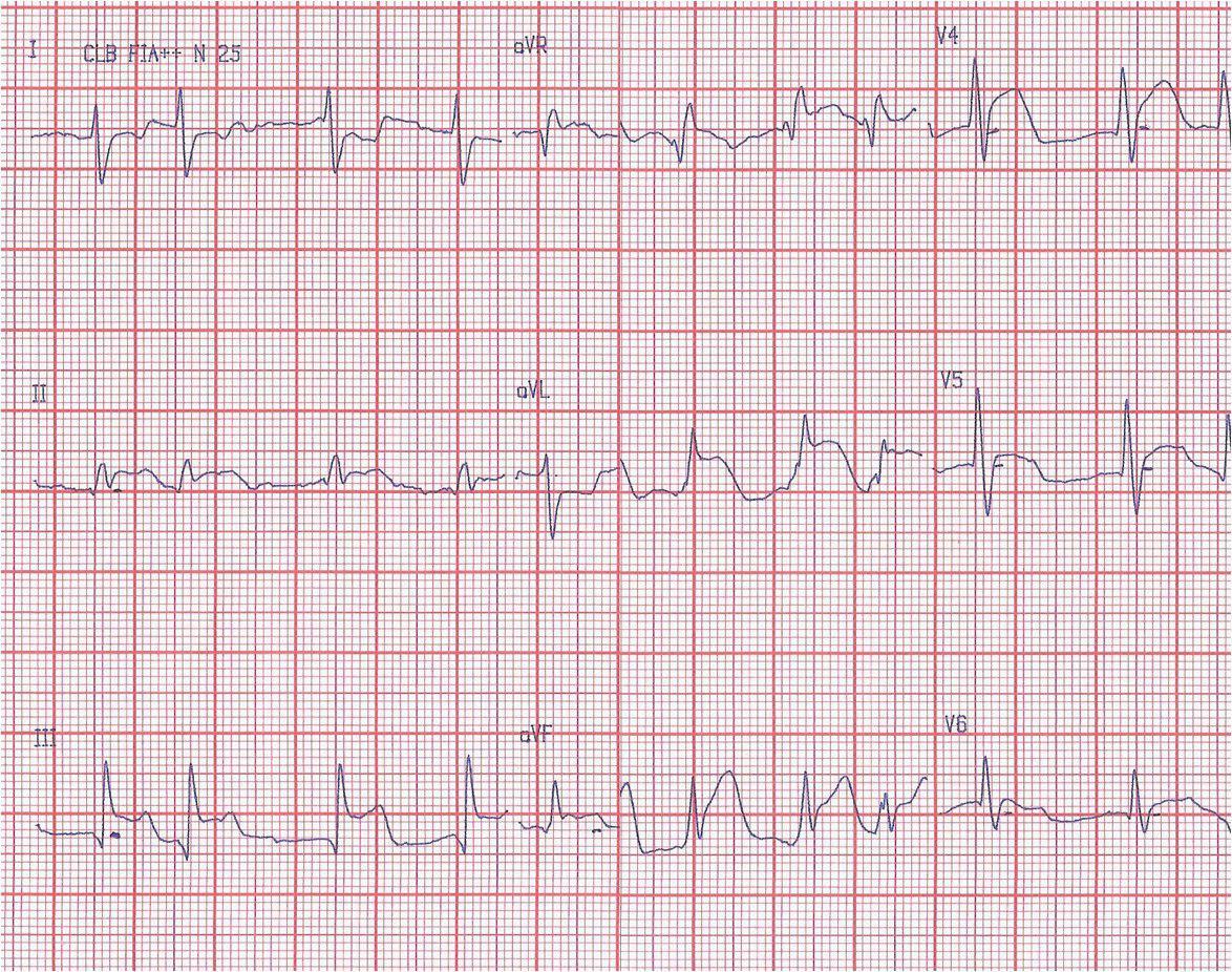 Masculino 64 años IAM de VD por embolia coronaria