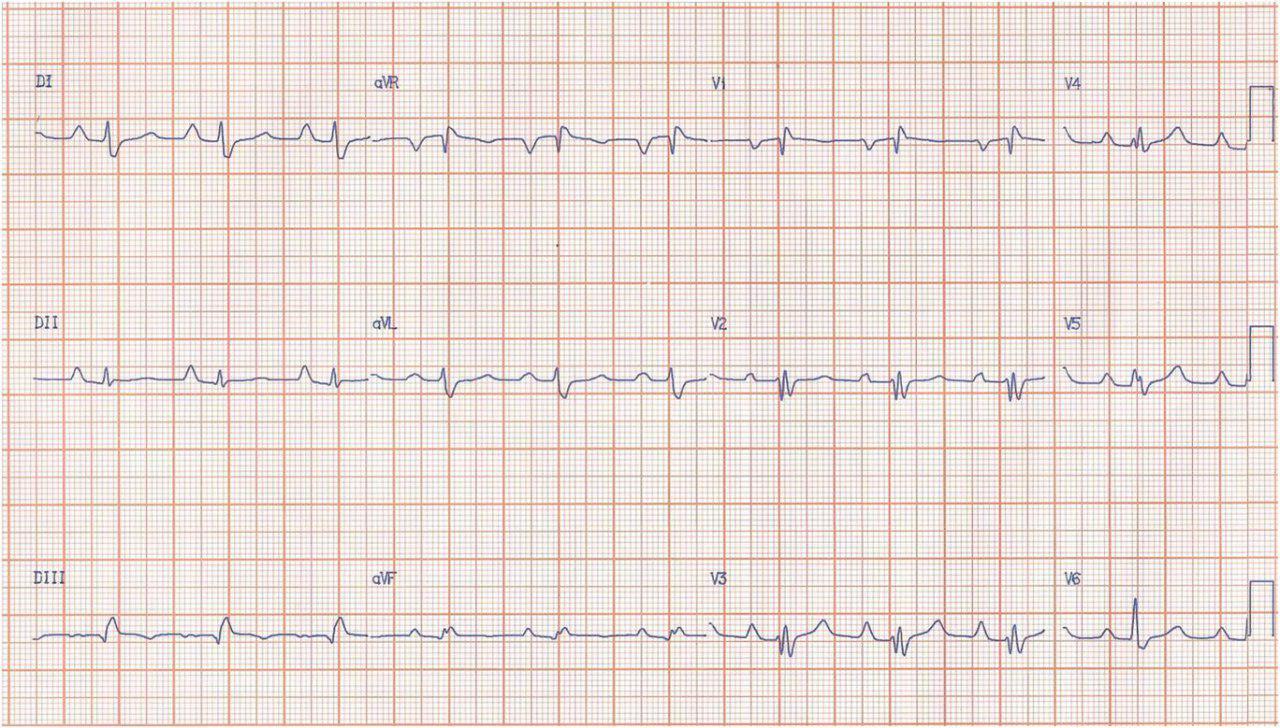 Hombre de 43 años: Enfermedad de Ebstein.
