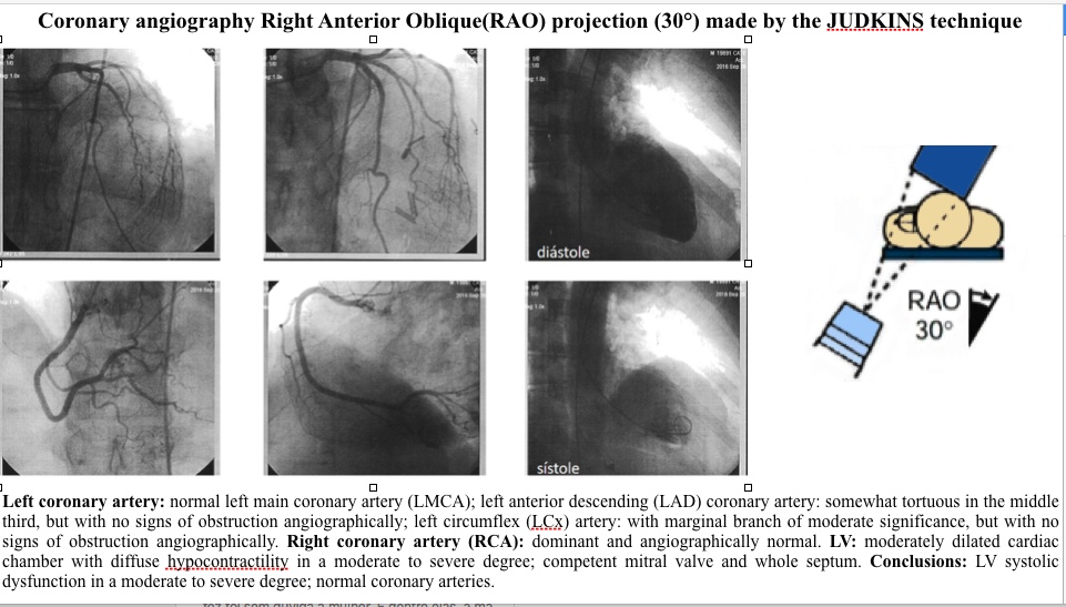 LV systolic dysfunction in a moderate to severe degree; normal coronary arteries.