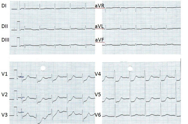 Síndrome coronario agudo por compromiso de arteria circunfleja